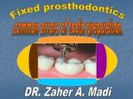 common errors of tooth preparation