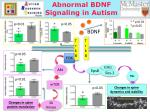 Abnormal BDNF Signaling in Autism