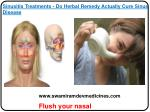 Sinusitis Treatments - Do Herbal Remedy Actually Cure Sinus