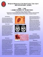 Malignant Melanoma of the Nasal Cavity- Case report 鼻腔內惡性黑色素瘤 - 病例報告